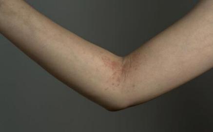 牛皮癣患者有哪些饮食禁忌?